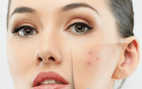 Choose your chemical peel – guide
